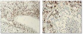 Иммуногистохимия: интерстициальная пневмония, вызванная PCV-2